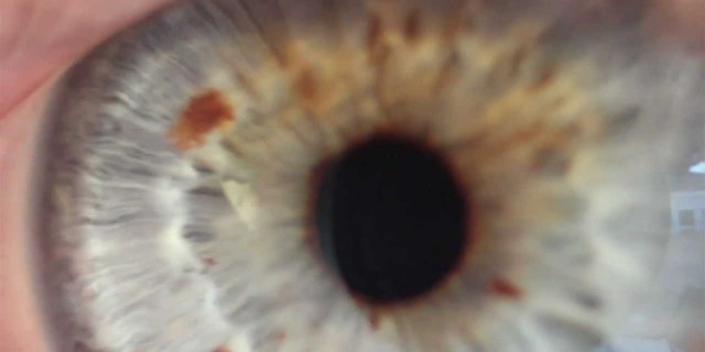 Eyeball Extreme Close Ups!